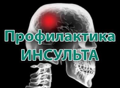 профилактика инсульта